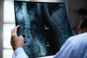 x-ray exam